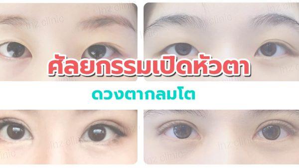 ดวงตากลมโต ด้วย ศัลยกรรมเปิดหัวตา